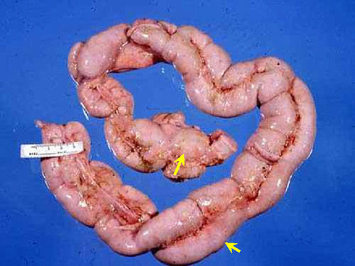 ابيضاض الدم سرطان الدم البقري Bovine leukemia صورة (42) : كتل صلبه بيضاء عديدة في الامعاء