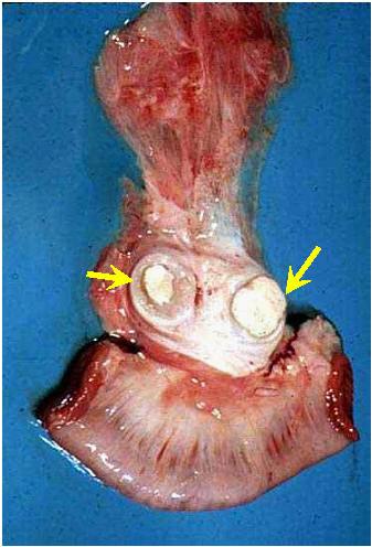 ابيضاض الدم سرطان الدم البقري Bovine leukemia صورة (43) : كتل صلبه بيضاء عديدة في