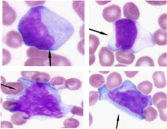 ابيضاض الدم الأمهاتي الليمفاوى (Lymphoblastic leukemia) صورة (18) : الليمفاويات الغير مثالية(Atypical lymphocytes)
