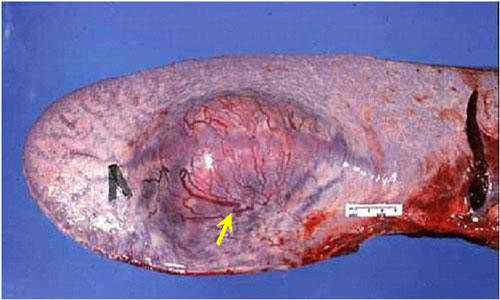ابيضاض الدم سرطان الدم البقري Bovine leukemia صورة (44) : كتل صلبه بيضاء عديدة في