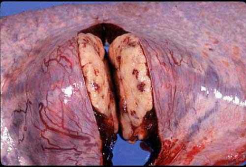 ابيضاض الدم سرطان الدم البقري Bovine leukemia صورة (45) : كتل صلبه بيضاء عديدة في