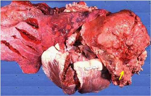 ابيضاض الدم سرطان الدم البقري Bovine leukemia صورة (48) : كتل صلبه بيضاء عديدة في >>>>>>>>>>