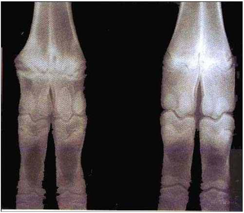 فقر دم نقص النحاس (5) :  هشاشة العظام (osteoperosis)