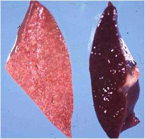 فقر دم ضغط النخاع المصاحب لسرطان الدم صورة (2) : الكبد والطحال في حالة إبيضاض الدم (مقطع عرضي)