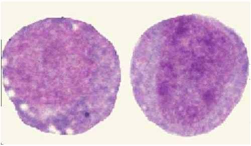 ابيضاض الدم الأمهاتي النخاعي صورة (5) :  ما قبل النخاعيات (Promyelocyte)