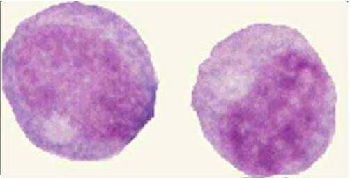 ابيضاض الدم الأمهاتي النخاعي صورة (6) : النخاعيات (Myelocyte)