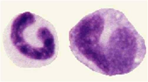 ابيضاض الدم الأمهاتي النخاعي صورة (7) : المتعادلات الشريطية (Band neutrophils)