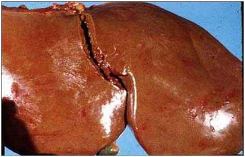 فقر الدم (7) : الكبد : موات حول غدى و صفراء فقر الدم التحللى