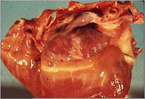 فقر الدم (14) : ضمور الدهن المصلى (serous atrophy of fat)
