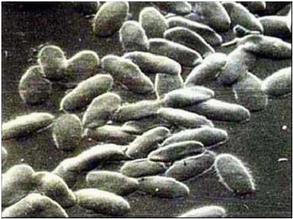 فقر الدم (18) : الجمال .. مجهر الكتروني مجسم .. اهليلجى بحدود غير واضحة قليلا.