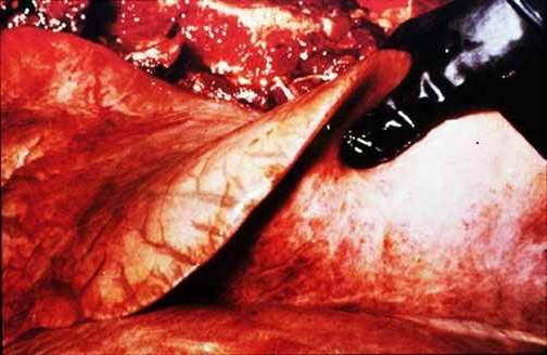مرض الحصان الأفريقي African horse sickness : وذمة شديدة في الرئة