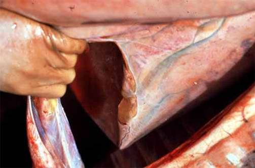 مرض الحصان الأفريقي African horse sickness : وذمة الرئة و سائل في التجويف الصدري