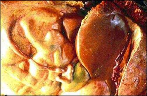 فقر الدم البابيزيا (Babesiosis) : الكبد متضخم ذو لون بنى مصفر