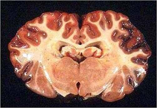 فقر الدم البابيزيا (Babesiosis) : البابيزيا المخية