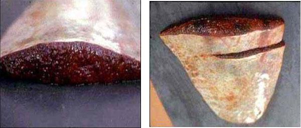 فقر الدم البابيزيا (Babesiosis) : الطحال : فرط النمو.