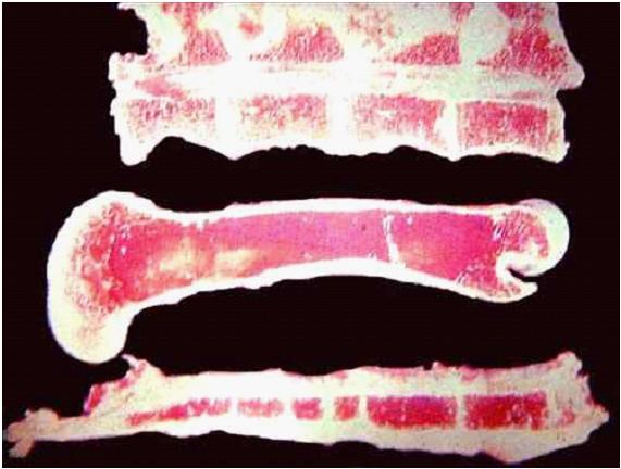 فقر الدم التحللي صورة (1) : فرط نمو خلايا الدم الحمراء