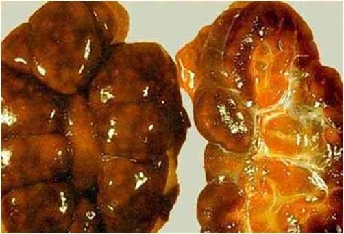 فقر دم مرض اللولبيات الخيطية (Leptospirosis) صورة (3) التهاب الكلى البينى البؤرى على خلفيه من داء الكلى الهيموجلوبيني