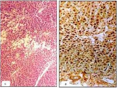 فقر دم مرض اللولبيات الخيطية (Leptospirosis) صورة (5) : الكبد