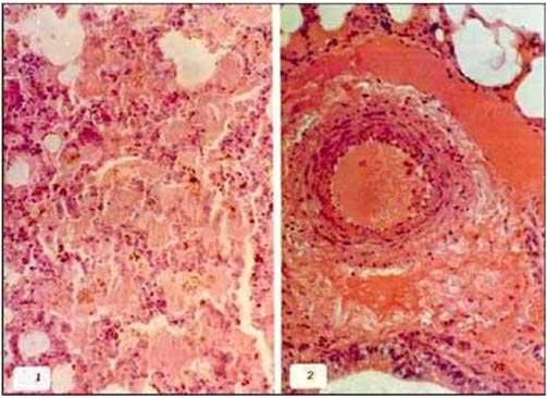 فقر دم مرض اللولبيات الخيطية (Leptospirosis) صورة (4) : الرئة