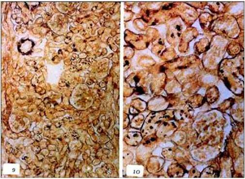 صبغة اللولبيات الخيطيه بالفضة (Leptospirosis) صورة (6)