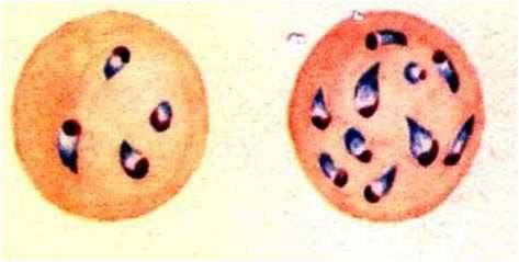 كمثريات الثيلريا theileriosis فى كريات الدم الحمراء