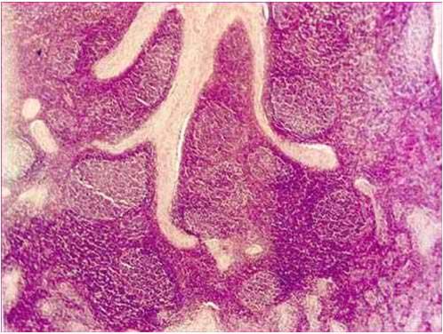 ثيليريا theileriosis غدة ليمفاوية لبقرة : فرط نمو الجريبات الليمفاوية