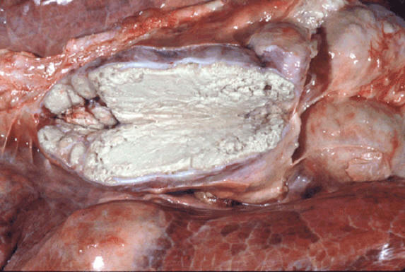 tuberculosis صورة( 4 ) : غدة ليمفاوية في جاموسة - موات سلي متجبن ومنتشر