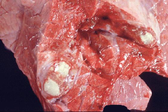 tuberculosis صورة( 5 ) : رئة بقرة بها عقد الحبيبومات السلية محاطة بحافظة