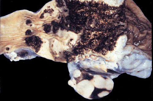 tuberculosis صورة( 7 ) : امعاء بقرة عند اتصال اللفائفي بالأعور التهاب معوي وغدي ليمفاوي سلي . نسيج ليمفاوي مائت