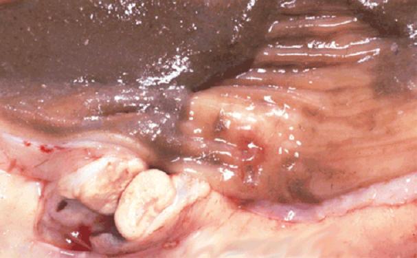 tuberculosis صورة( 8 ) : أمعاء وغدد ليمفاوية لجاموسة