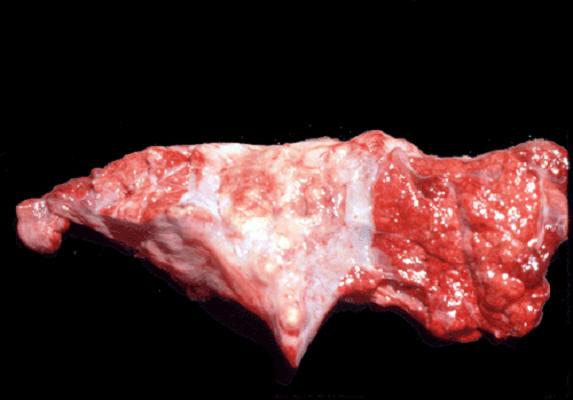 صورة( 16 ) : رئة جاموسة التهاب سلي شعبي رئوي . الشكل الغدي الفصيصي