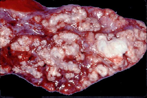 tuberculosis صورة( 17 ) : رئة جاموسة التهاب سلي شعبي رئوي . الشكل الفصيصي