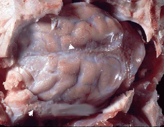 tuberculosis صورة( 30 ) : مخ خنزير - الالتهاب السحائي السلي