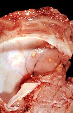 صورة( 31 ) : مقطع عرضي في مخ بقرة - الالتهاب السلي للسحايا والمخ العديد من العقد في متن المخ والاغشية السحائية