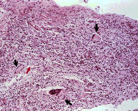 صورة( 24 ) : حبيبوم سلي في مبيض بقرة العديد من خلايا لانجهان ( --> ) والخلايا الظهارانية ( --> )