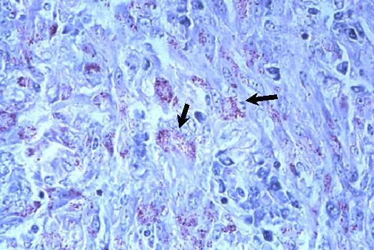 صورة( 26 ) : حبيبوم سل في رحم بقرة صبغة زيل نلسن - تظهر ميكروبات السل حمراء في الخلايا الظهارانية