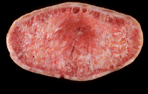 صورة (7) Actinobacillosis : اللسان المتخشب بداء العصيات الشعاعية (مقطع عرضي) النسيج الليفي حل محل العضلات