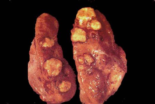 صورة (8) Actinobacillosis :داء العصيات الشعاعية في بقرة حبيبومات صديدية في الغدة خلف بلعومية