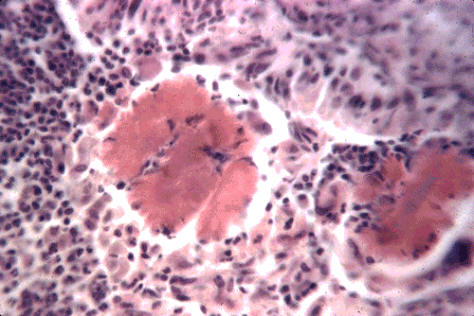 صورة (11) Actinobacillosis : حبيبات الكبريت لداء العصيات الشعاعيه رد الفعل الحبيبومى