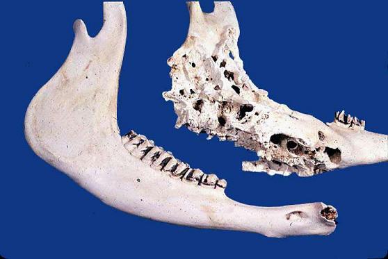 صورة (Actinomycosis (4 : التهاب العظم والنخاع الفطري الشعاعي المزمن