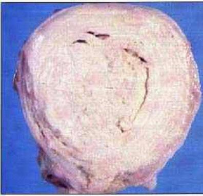 صورة (8) التهاب الغدة الليمفاويه المتجبن ( Caseous lymphadenitis) : غنمة - التهاب الغدة الليمفاوية المتجبن (الطبقات المتراكزة)