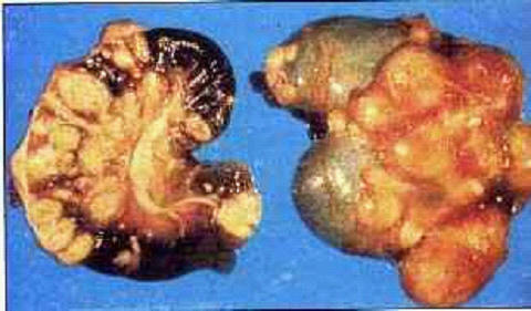 صورة (11) السل الكاذب (psedotuberculosis) : كلية - خراريج بها طبقات متراكزة