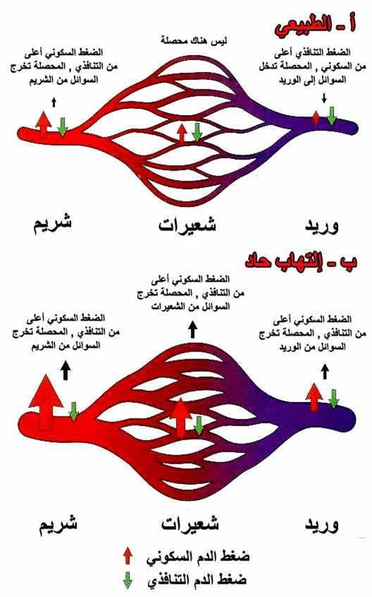 الالتهاب صوره (5) التغيرات في الشعيرات الدمويه