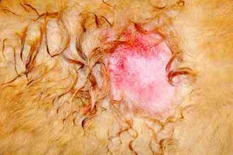 الالتهاب inflammation صوره (1) : إحمرار و سخونة بقعة إلتهابية في جلد كلب