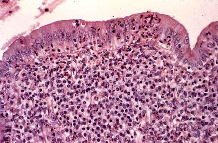 صورة (3): رحم بقرة بعد الجماع ,تخلل اللمفاويات و خلايا البلازما و العدلات فى بطانة الرحم