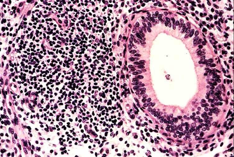 صورة (4): التهاب رحم بقرة بعد الجماع , بؤرة كبيرة من الليمفاويات بجانب غدة رحمية