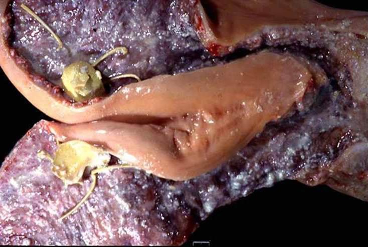 صورة (7) : التهاب مزمن لبطانة الرحم فى بقرة مع أنسجة جنينية متهتكة , تلون المخاطية باللون الرمادى مع وجود كرة قاسية من أنسجة جنينية