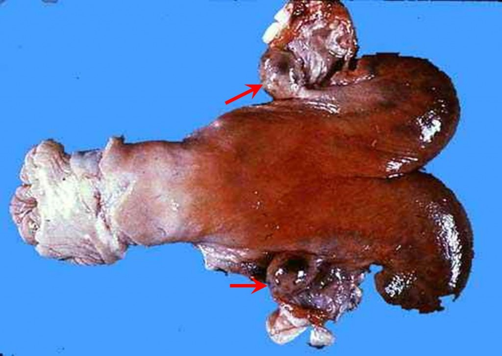 صورة (21): مخاطية الرحم فى بقرة مبايض متحوصلة مع مخاطية الرحم