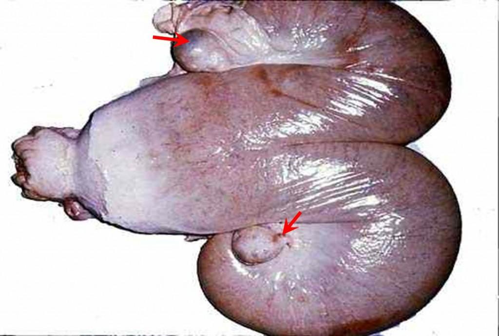 صورة (34): بقرة تعاني من حويصلات جريبية على المبيض و موة الرحم يحتوى قرني الرحم على سائل معتم متوسط اللزوجة