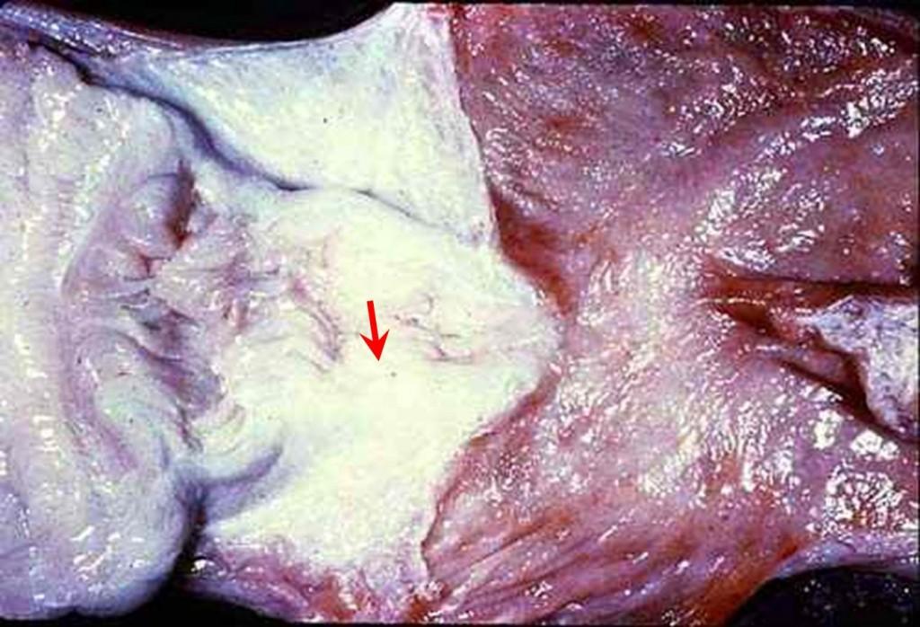 صورة (35): موة الرحم فى بقرة , صغر فتحة عنق الرحم الداخلية أدت الى موة الرحم يحتوي الرحم على سائل رقيق